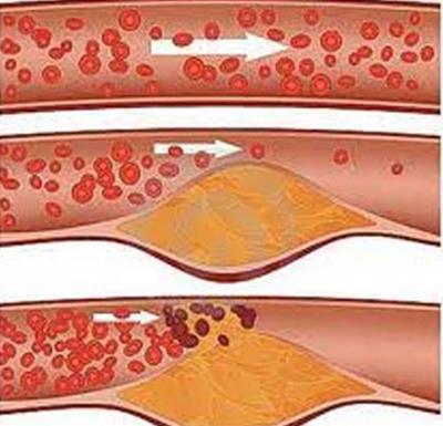 Chứng tăng mỡ máu