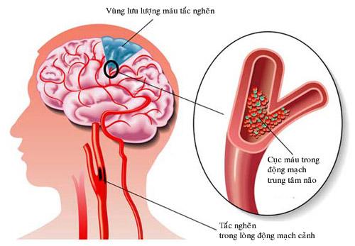 Phòng, trị rối loạn tuần hoàn não ở người cao tuổi